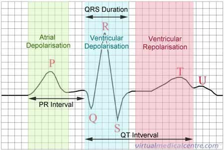 How To Read An Ecg Medgeeks