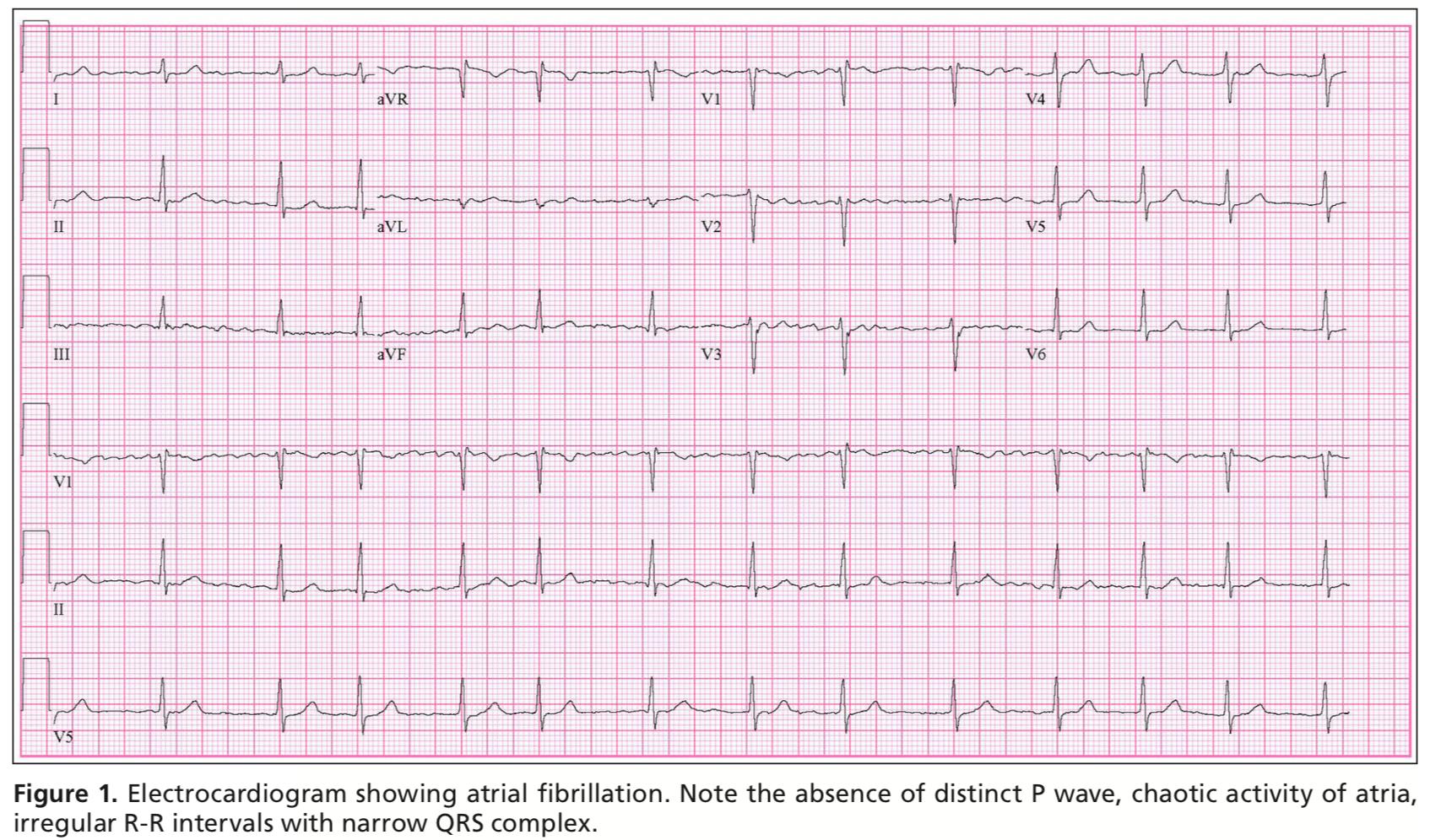 EKG of AFIB