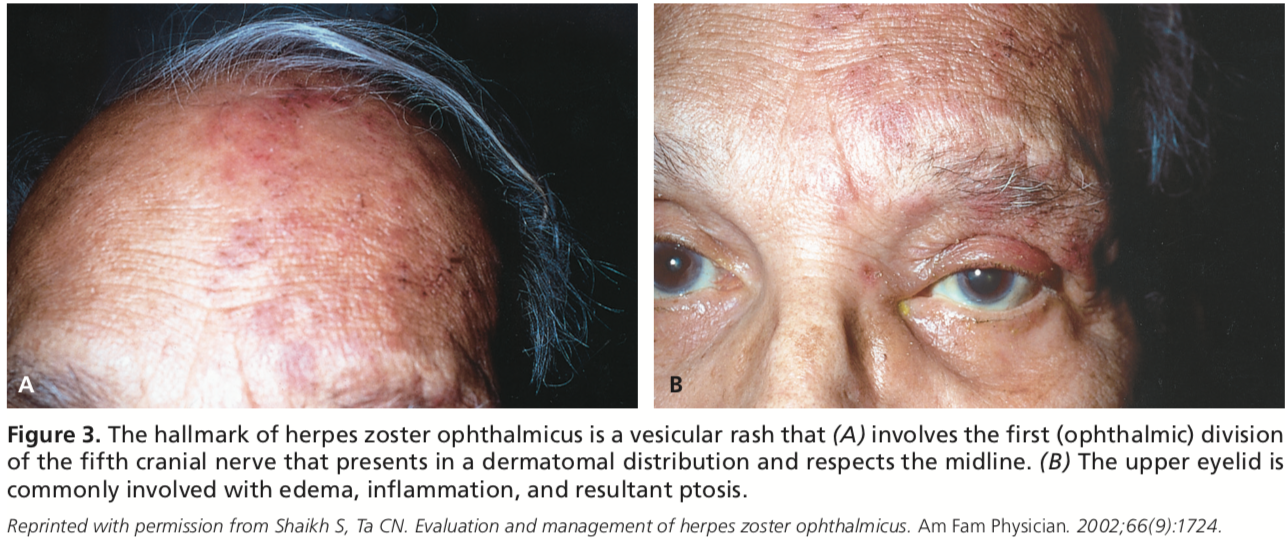 herpes zoster ophthalmicus