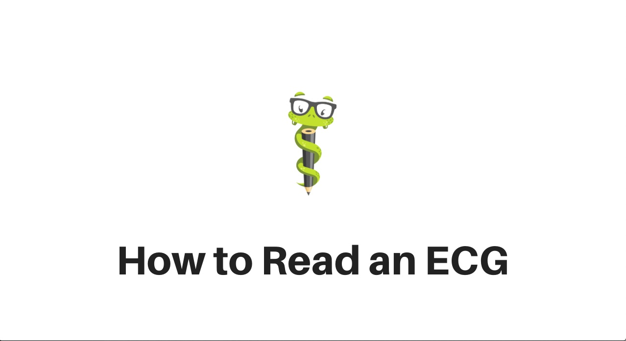 Medgeeks How to Read an ECG