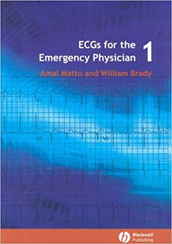 ECG's for ED Physicians