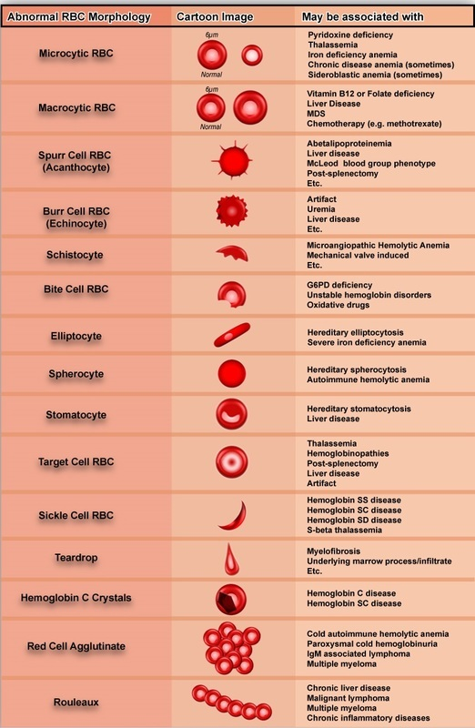 Peripheral blood smear in anemia