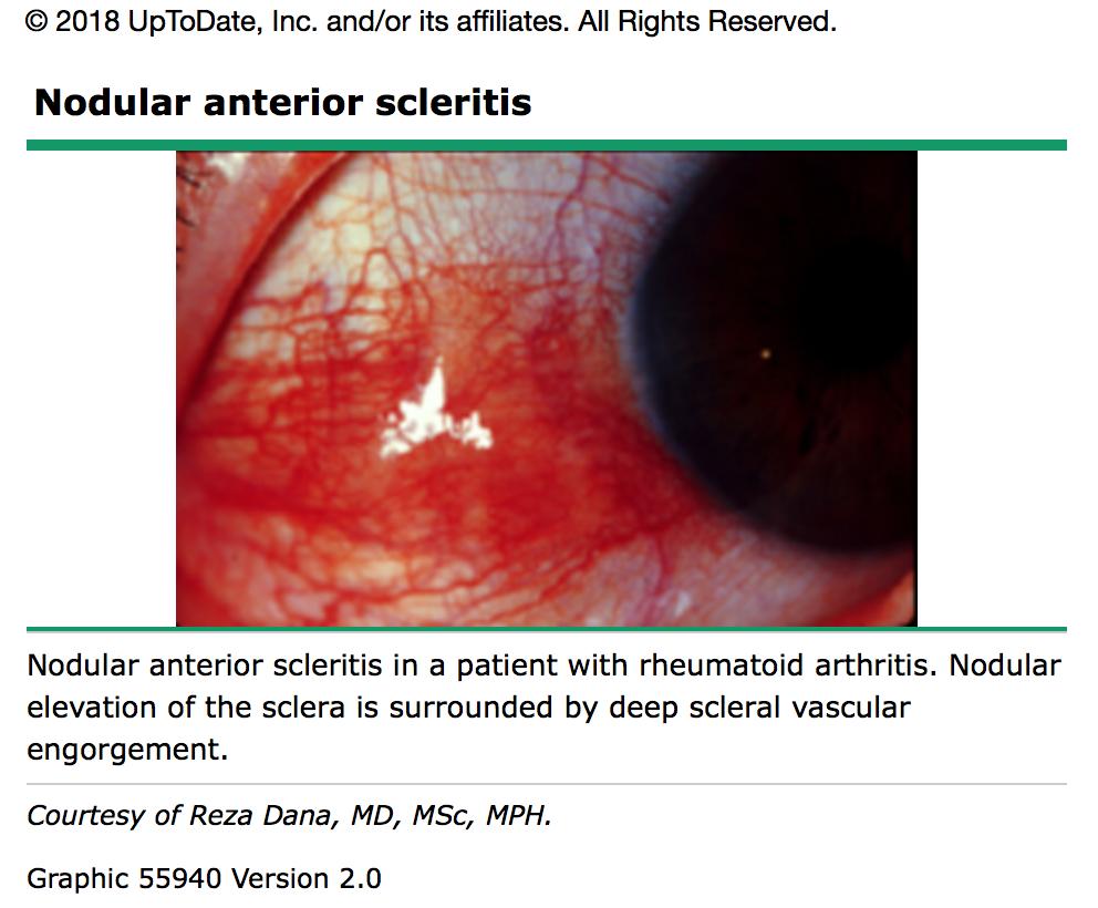 lyme disease scleritis